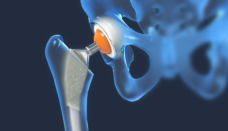 Ortopedia e reumatologia