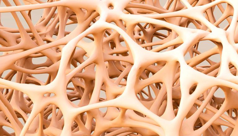 Malattie metaboliche - Osteoporosi